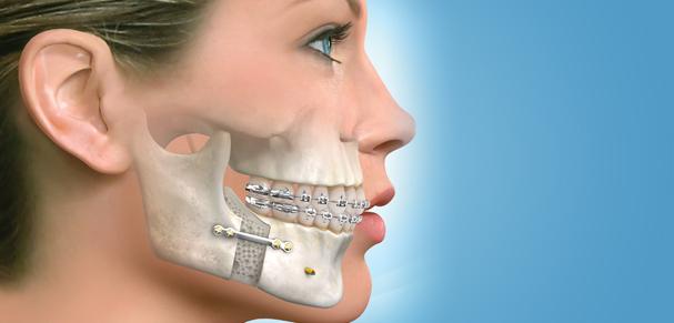 """Résultat de recherche d'images pour """"chirurgie maxillo-faciale"""""""